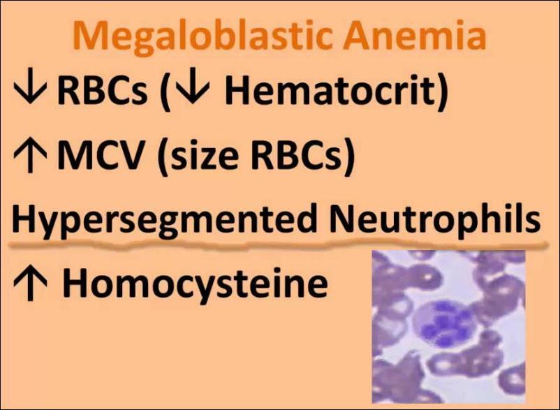آنمی یا کم خونی مگالوبلاستیک چیست؟ چه علایم و نشانه هایی دارد؟ راه های تشخیص و درمان